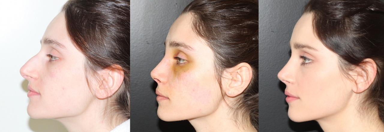 Массаж носа после ринопластики как делать